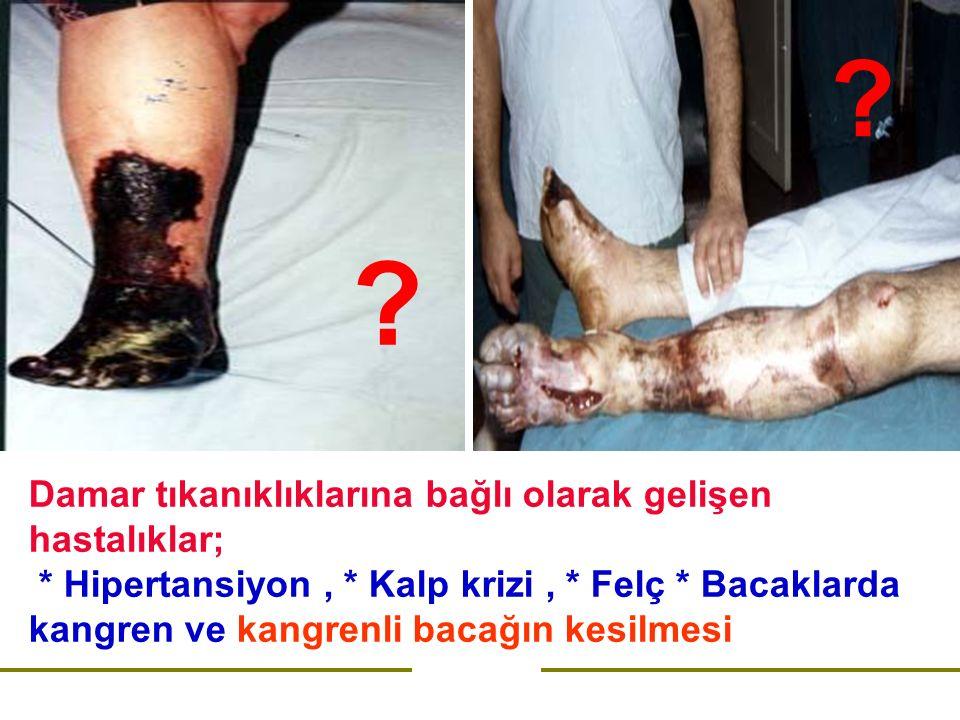 Damar tıkanıklıklarına bağlı olarak gelişen hastalıklar; * Hipertansiyon, * Kalp krizi, * Felç * Bacaklarda kangren ve kangrenli bacağın kesilmesi .