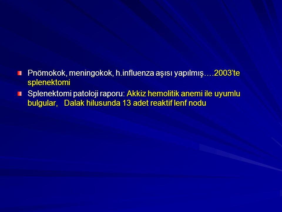 Pnömokok, meningokok, h.influenza aşısı yapılmış….2003'te splenektomi Splenektomi patoloji raporu: Akkiz hemolitik anemi ile uyumlu bulgular, Dalak hilusunda 13 adet reaktif lenf nodu