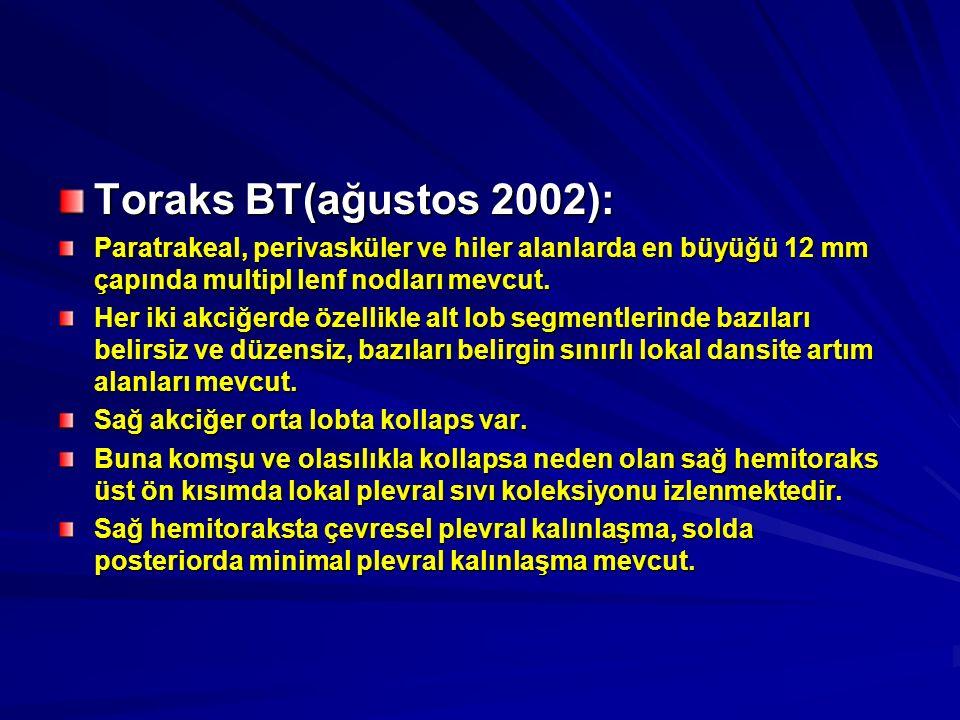 Toraks BT(ağustos 2002): Paratrakeal, perivasküler ve hiler alanlarda en büyüğü 12 mm çapında multipl lenf nodları mevcut. Her iki akciğerde özellikle