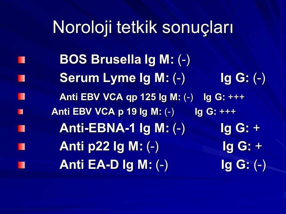 Noroloji tetkik sonuçları BOS Brusella Ig M: (-) BOS Brusella Ig M: (-) Serum Lyme Ig M: (-) Ig G: (-) Serum Lyme Ig M: (-) Ig G: (-) Anti EBV VCA qp