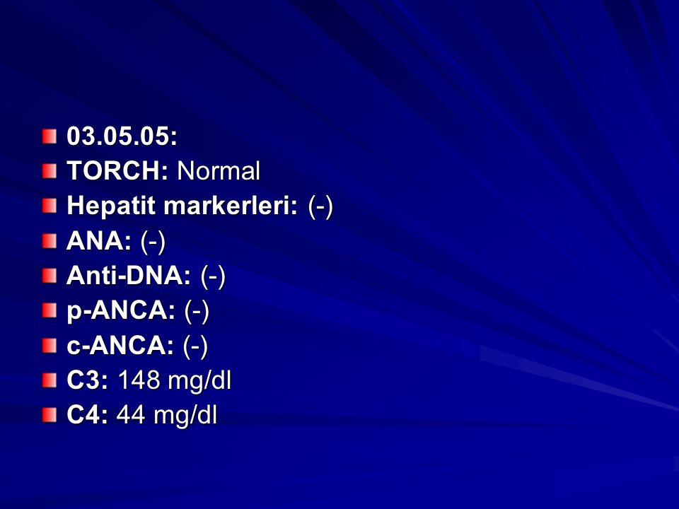 03.05.05: TORCH: Normal Hepatit markerleri: (-) ANA: (-) Anti-DNA: (-) p-ANCA: (-) c-ANCA: (-) C3: 148 mg/dl C4: 44 mg/dl