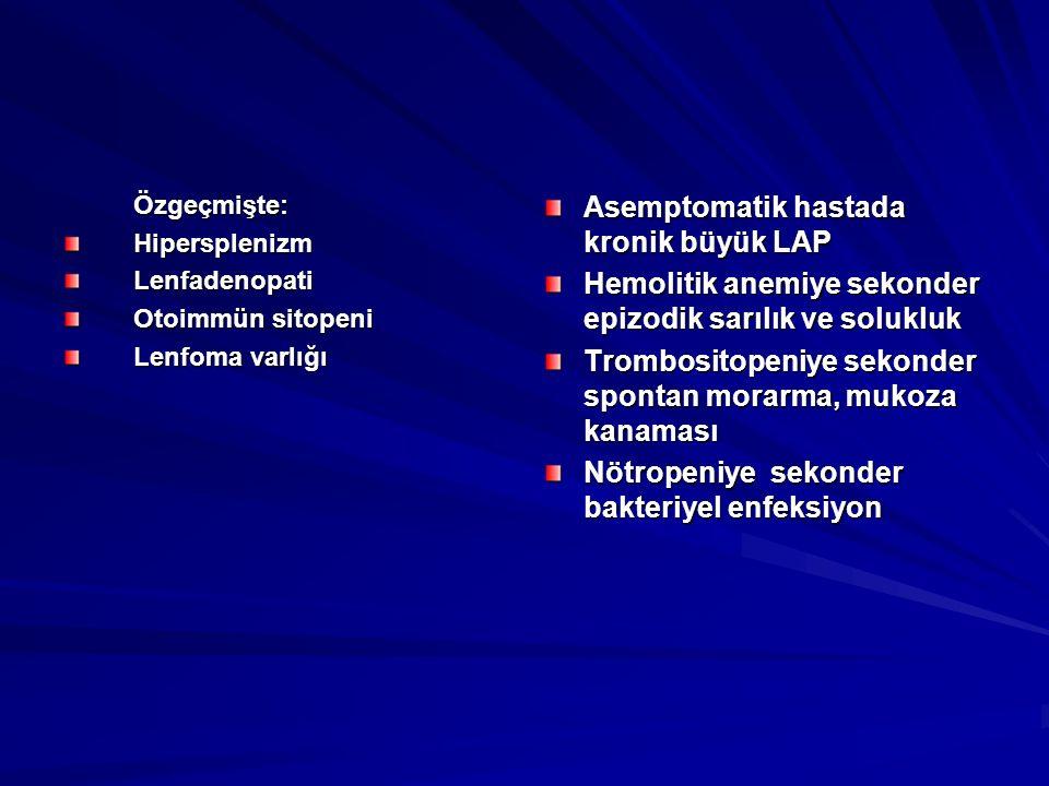 Özgeçmişte:HipersplenizmLenfadenopati Otoimmün sitopeni Lenfoma varlığı Asemptomatik hastada kronik büyük LAP Hemolitik anemiye sekonder epizodik sarı