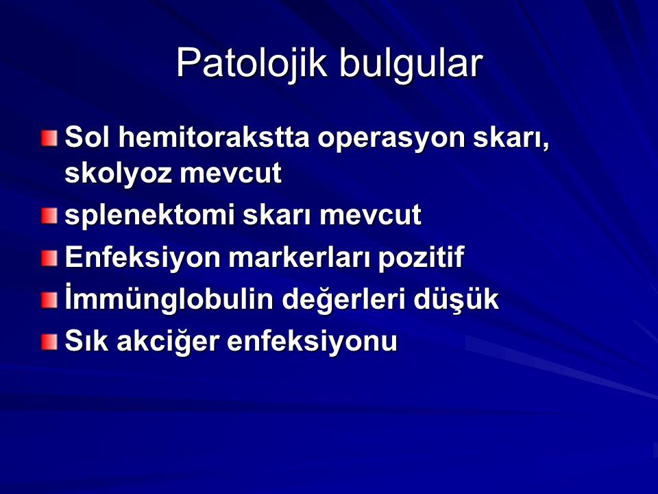 Patolojik bulgular Sol hemitorakstta operasyon skarı, skolyoz mevcut splenektomi skarı mevcut Enfeksiyon markerları pozitif İmmünglobulin değerleri düşük Sık akciğer enfeksiyonu