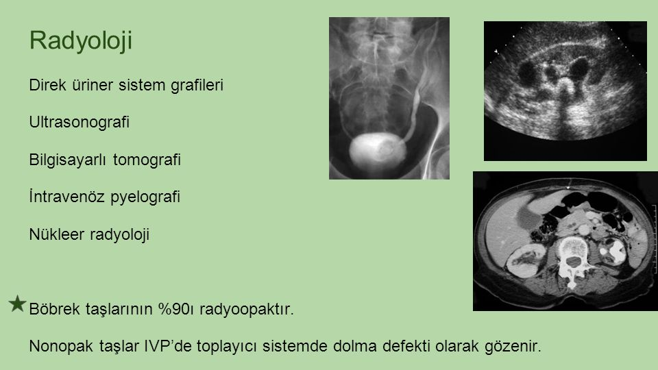 Radyoloji Direk üriner sistem grafileri Ultrasonografi Bilgisayarlı tomografi İntravenöz pyelografi Nükleer radyoloji Böbrek taşlarının %90ı radyoopak