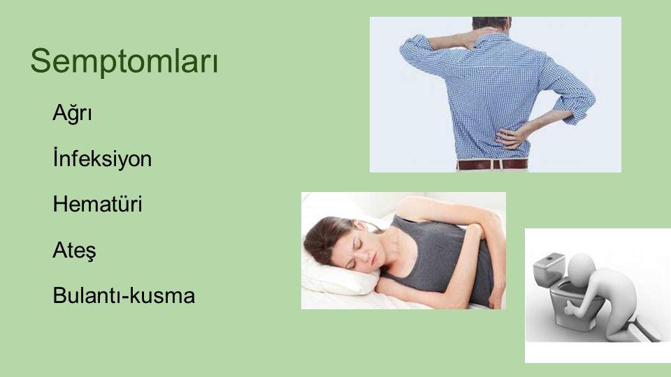 Semptomları Ağrı İnfeksiyon Hematüri Ateş Bulantı-kusma