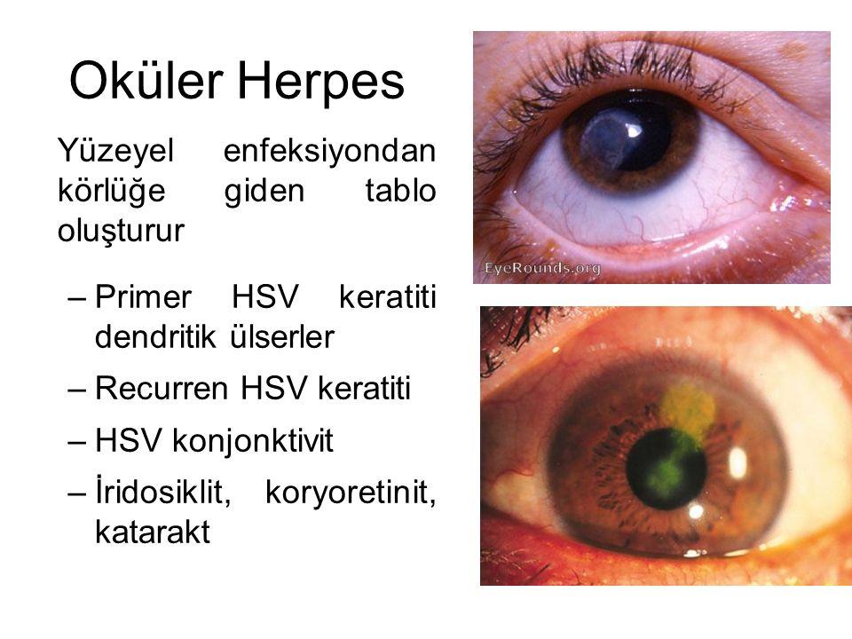 Oküler Herpes Yüzeyel enfeksiyondan körlüğe giden tablo oluşturur –Primer HSV keratiti dendritik ülserler –Recurren HSV keratiti –HSV konjonktivit –İr