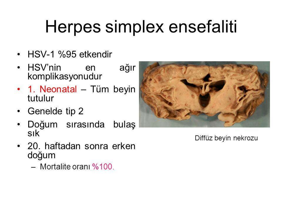 Herpes simplex ensefaliti HSV-1 %95 etkendir HSV'nin en ağır komplikasyonudur 1. Neonatal – Tüm beyin tutulur Genelde tip 2 Doğum sırasında bulaş sık