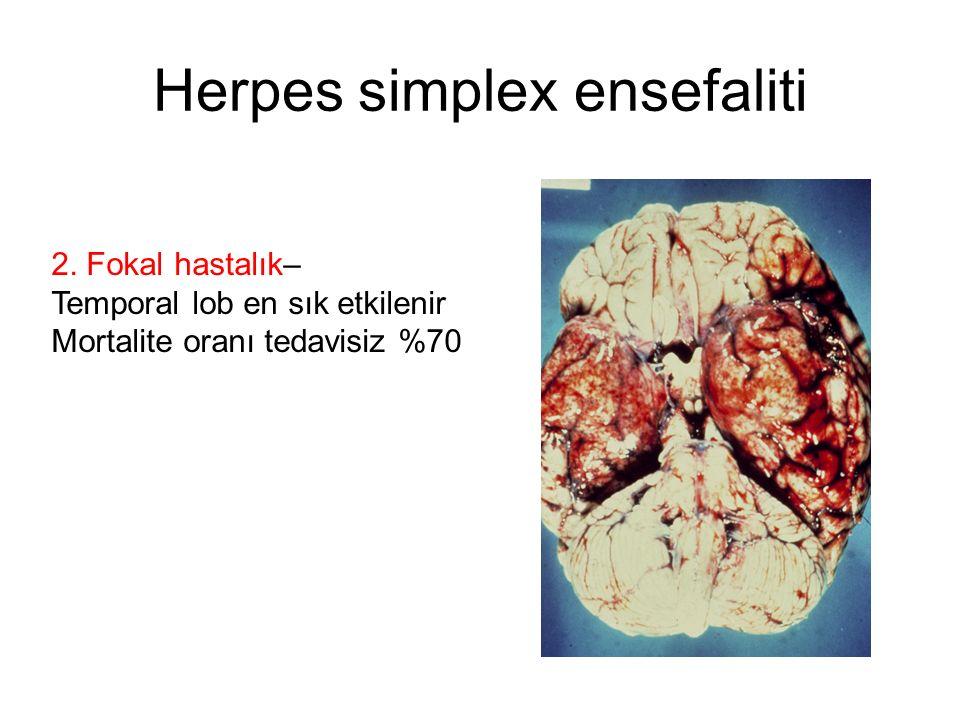 Herpes simplex ensefaliti 2. Fokal hastalık– Temporal lob en sık etkilenir Mortalite oranı tedavisiz %70