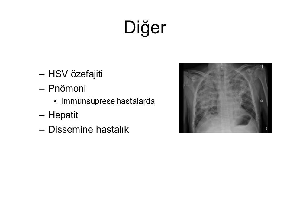 Diğer –HSV özefajiti –Pnömoni İmmünsüprese hastalarda –Hepatit –Dissemine hastalık