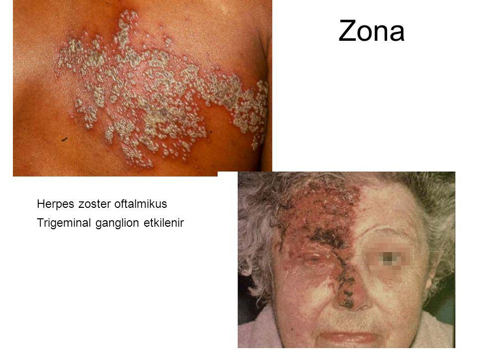 Zona Herpes zoster oftalmikus Trigeminal ganglion etkilenir