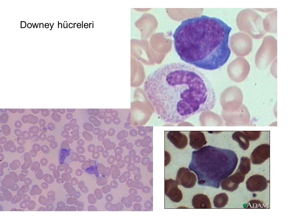 Downey hücreleri