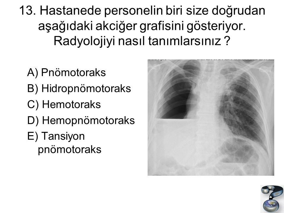 13. Hastanede personelin biri size doğrudan aşağıdaki akciğer grafisini gösteriyor. Radyolojiyi nasıl tanımlarsınız ? A) Pnömotoraks B) Hidropnömotora