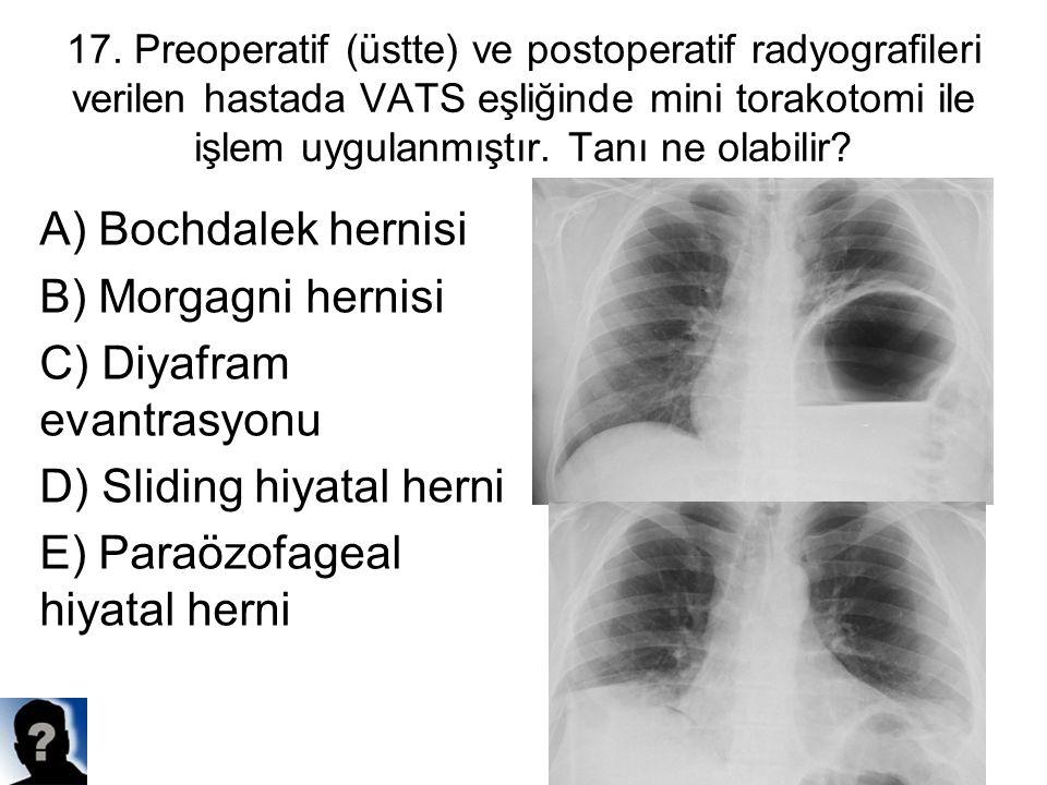 17. Preoperatif (üstte) ve postoperatif radyografileri verilen hastada VATS eşliğinde mini torakotomi ile işlem uygulanmıştır. Tanı ne olabilir? A) Bo
