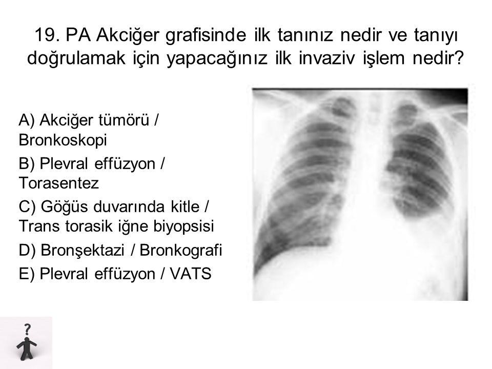 19. PA Akciğer grafisinde ilk tanınız nedir ve tanıyı doğrulamak için yapacağınız ilk invaziv işlem nedir? A) Akciğer tümörü / Bronkoskopi B) Plevral