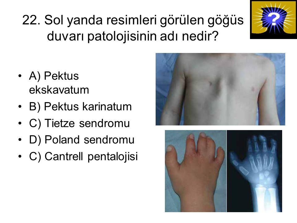 22. Sol yanda resimleri görülen göğüs duvarı patolojisinin adı nedir? A) Pektus ekskavatum B) Pektus karinatum C) Tietze sendromu D) Poland sendromu C