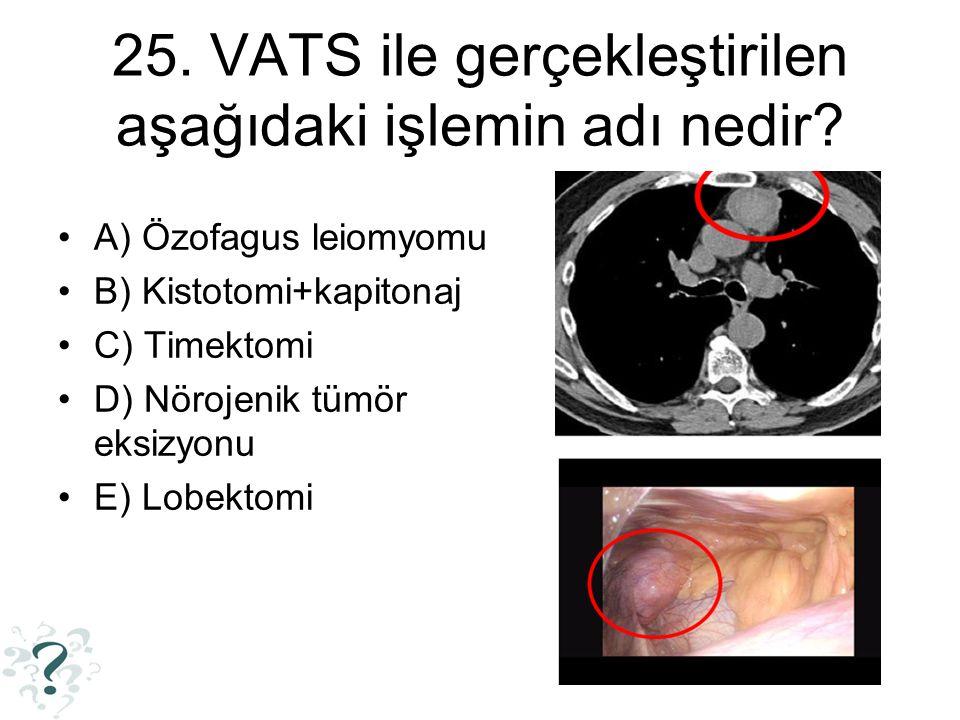 25. VATS ile gerçekleştirilen aşağıdaki işlemin adı nedir? A) Özofagus leiomyomu B) Kistotomi+kapitonaj C) Timektomi D) Nörojenik tümör eksizyonu E) L