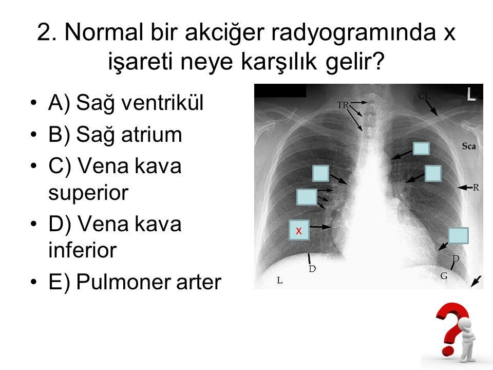 2. Normal bir akciğer radyogramında x işareti neye karşılık gelir? A) Sağ ventrikül B) Sağ atrium C) Vena kava superior D) Vena kava inferior E) Pulmo