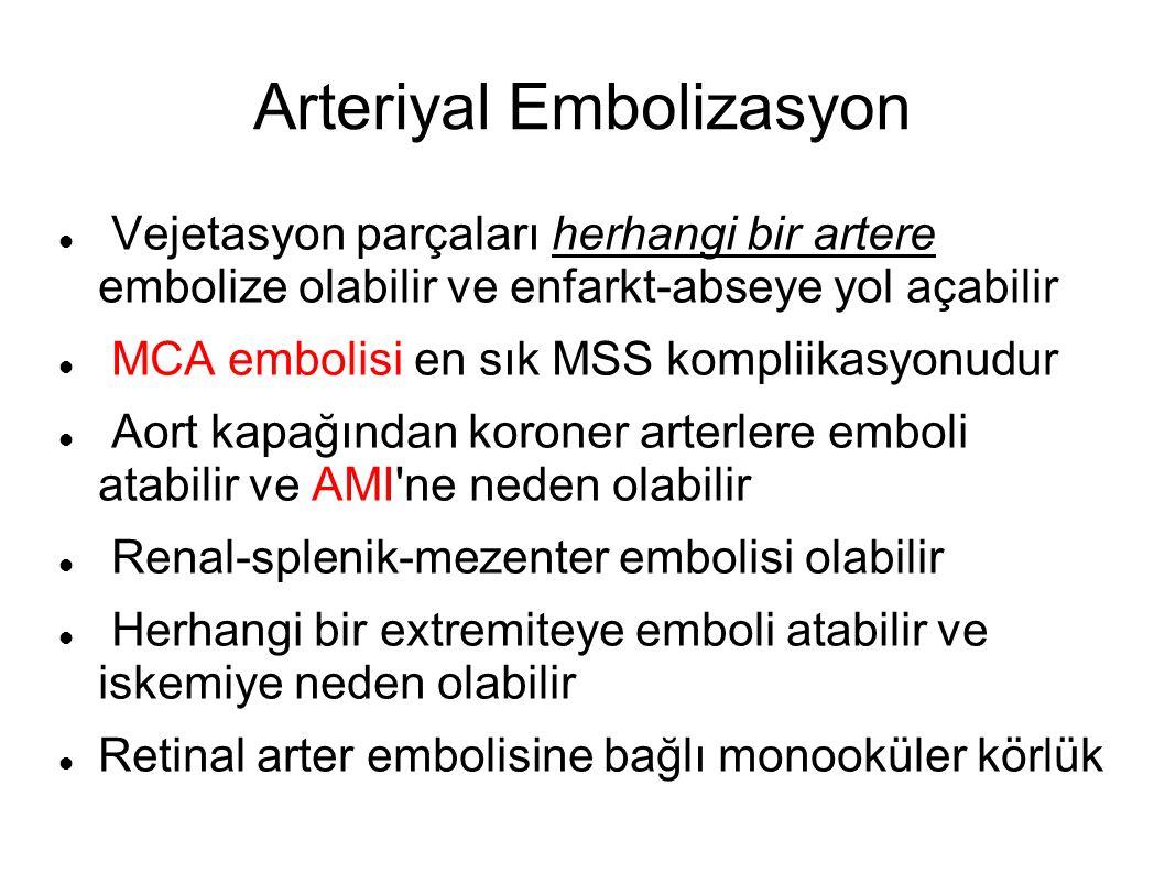 Arteriyal Embolizasyon Vejetasyon parçaları herhangi bir artere embolize olabilir ve enfarkt-abseye yol açabilir MCA embolisi en sık MSS kompliikasyonudur Aort kapağından koroner arterlere emboli atabilir ve AMI ne neden olabilir Renal-splenik-mezenter embolisi olabilir Herhangi bir extremiteye emboli atabilir ve iskemiye neden olabilir Retinal arter embolisine bağlı monooküler körlük