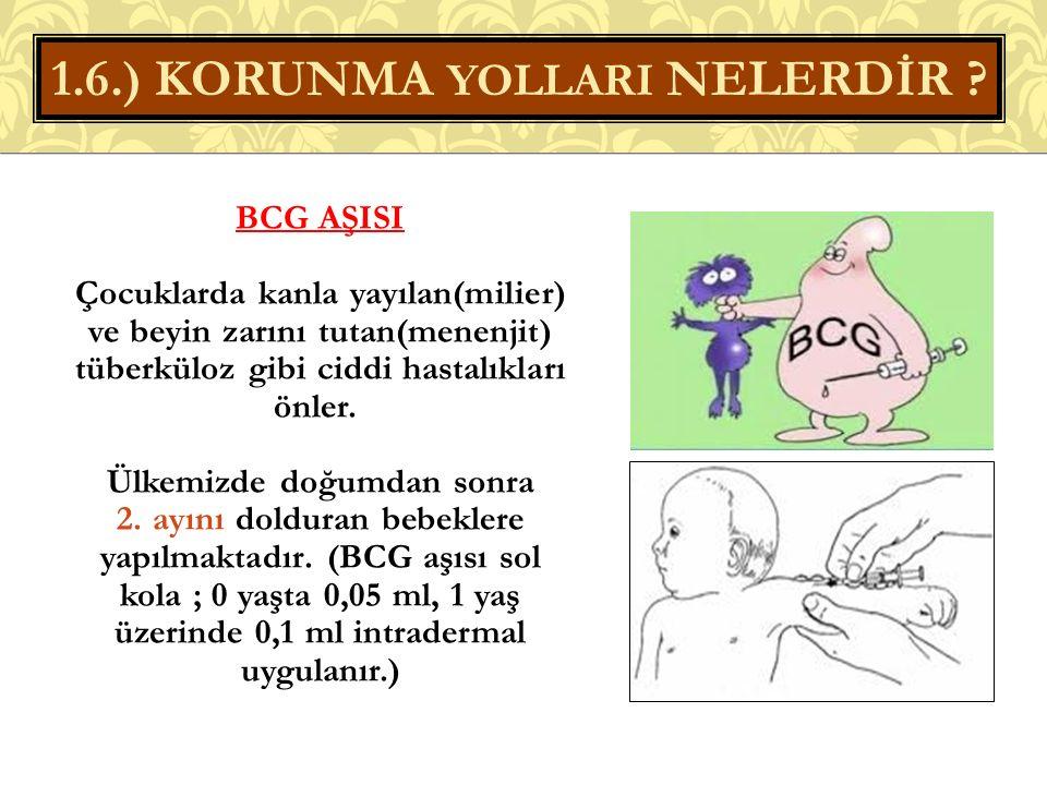 BCG AŞISI Çocuklarda kanla yayılan(milier) ve beyin zarını tutan(menenjit) tüberküloz gibi ciddi hastalıkları önler.