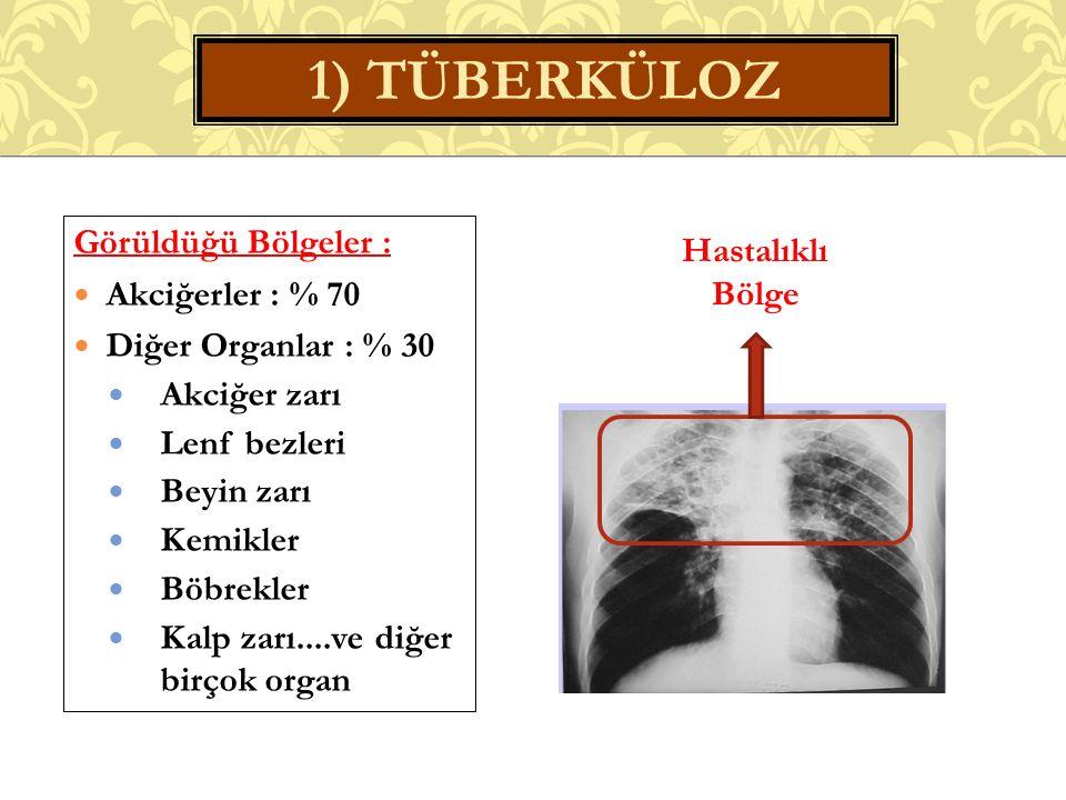 1) TÜBERKÜLOZ Görüldüğü Bölgeler : Akciğerler : % 70 Diğer Organlar : % 30 Akciğer zarı Lenf bezleri Beyin zarı Kemikler Böbrekler Kalp zarı....ve diğer birçok organ Hastalıklı Bölge
