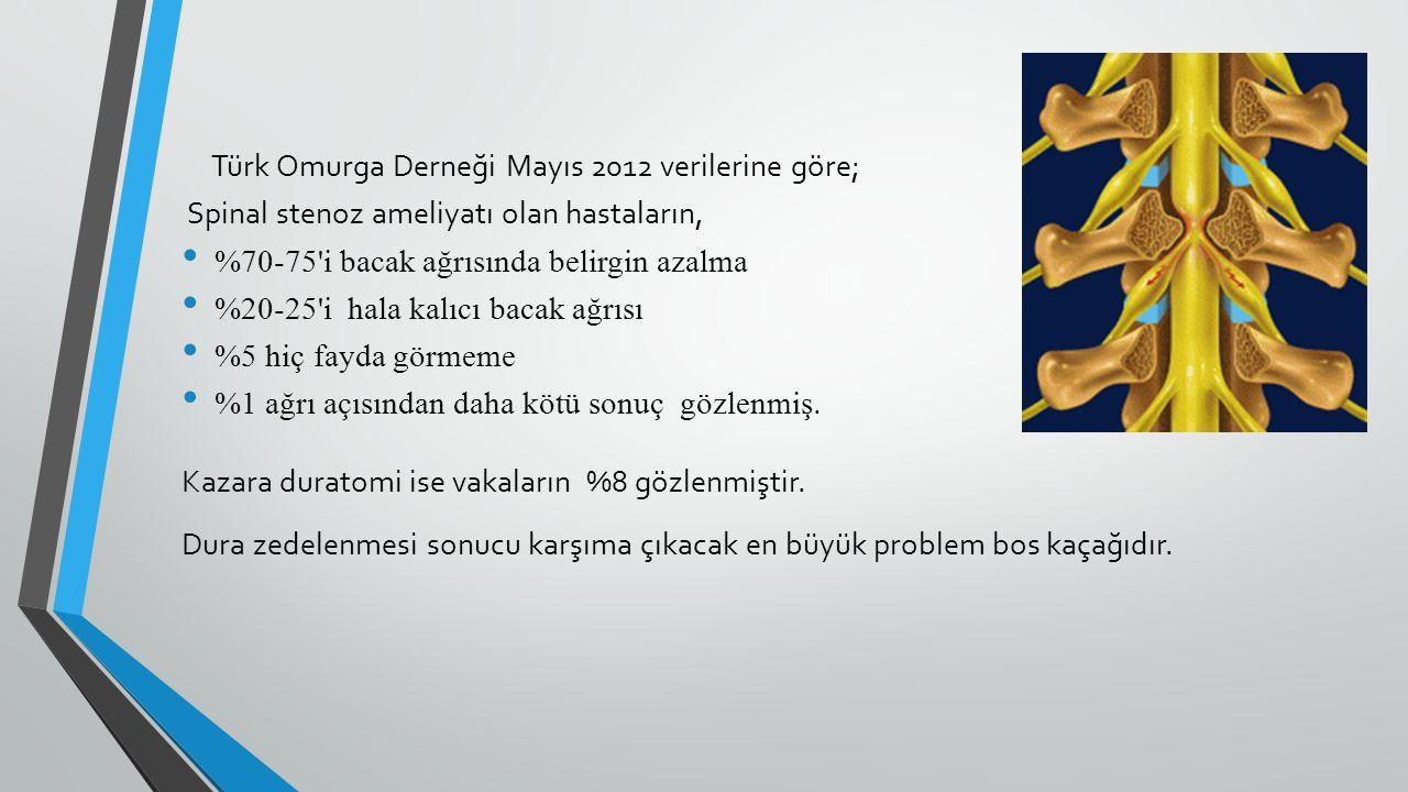 Türk Omurga Derneği Mayıs 2012 verilerine göre; Spinal stenoz ameliyatı olan hastaların, %70-75'i bacak ağrısında belirgin azalma %20-25'i hala kalıcı