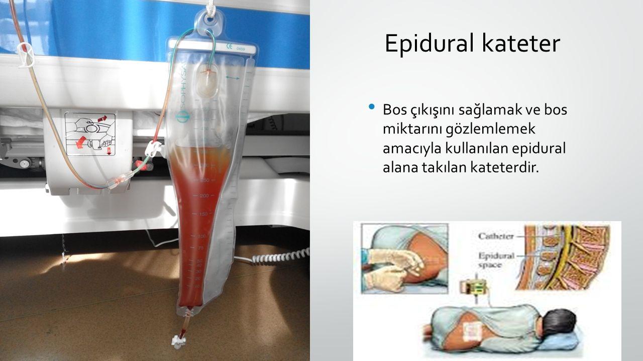 Epidural kateter Bos çıkışını sağlamak ve bos miktarını gözlemlemek amacıyla kullanılan epidural alana takılan kateterdir.