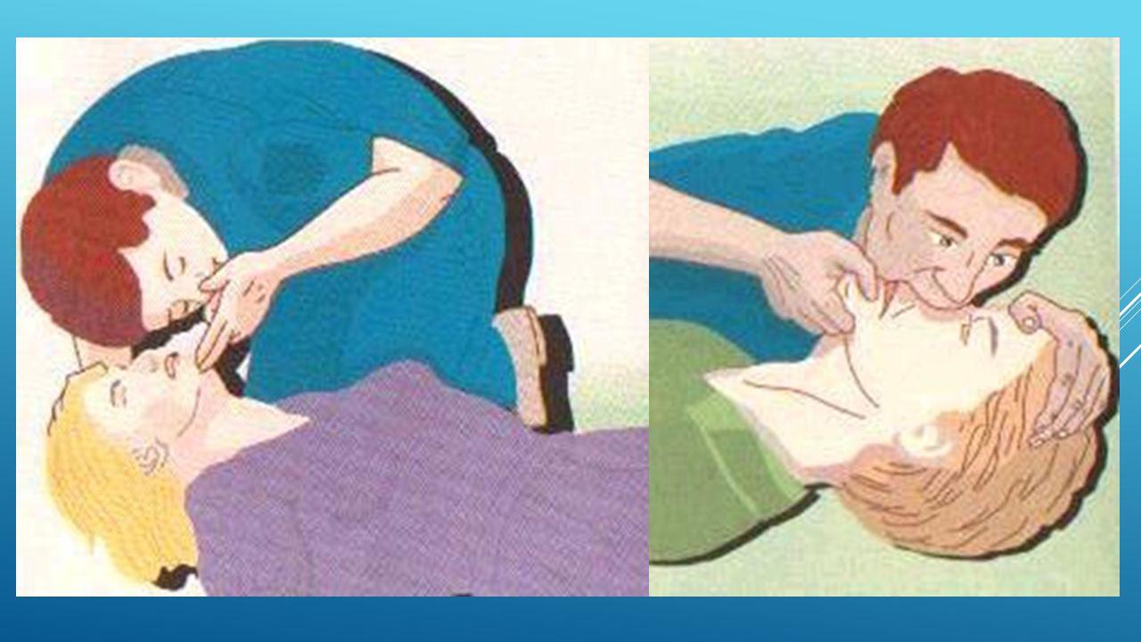 KIRIKLARDA İLK YARDIM NASIL YAPILIR.1.Hasta sarsılmaz ve hareket ettirilmez.
