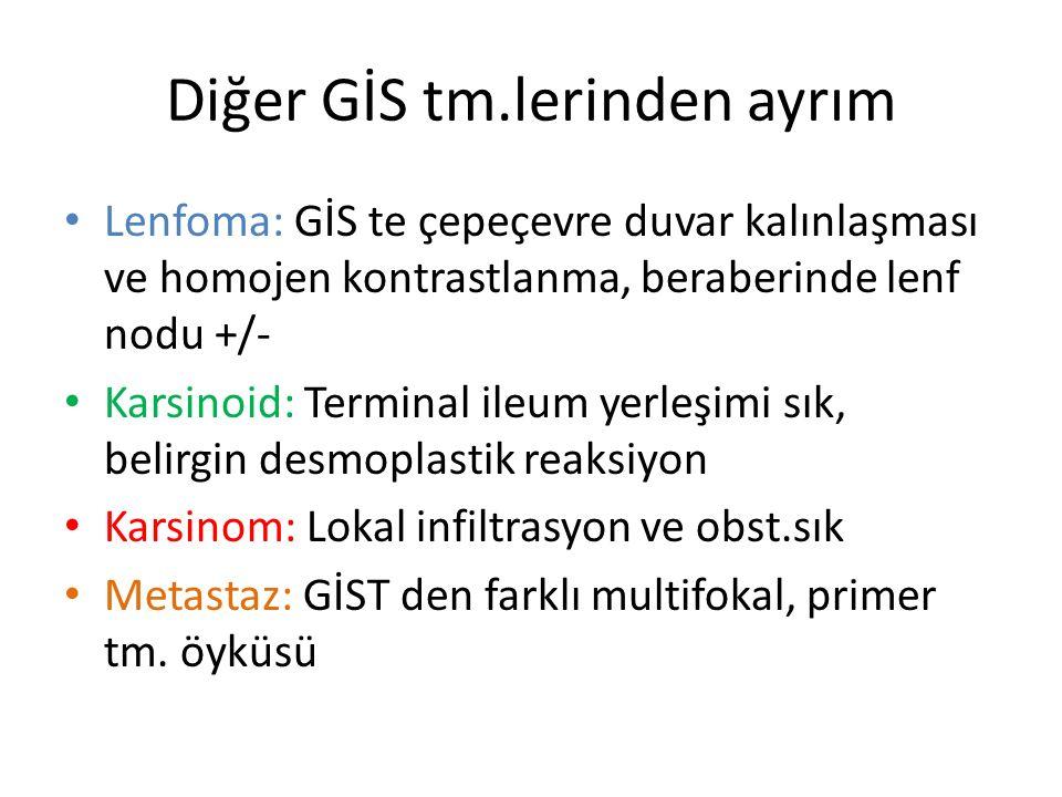 Diğer GİS tm.lerinden ayrım Lenfoma: GİS te çepeçevre duvar kalınlaşması ve homojen kontrastlanma, beraberinde lenf nodu +/- Karsinoid: Terminal ileum