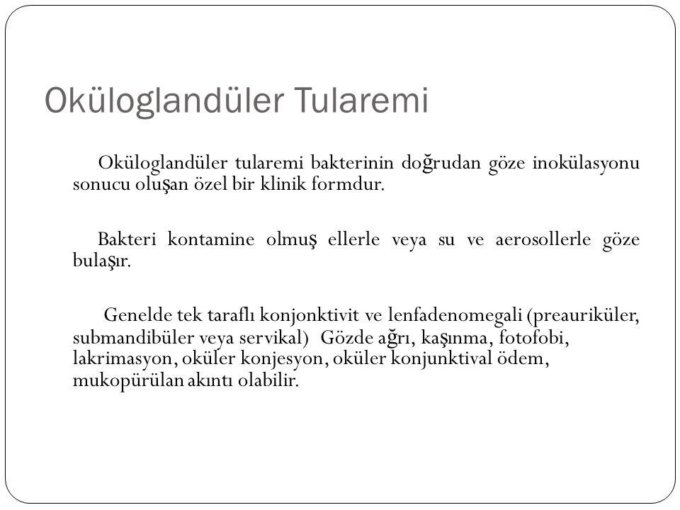 Oküloglandüler Tularemi Oküloglandüler tularemi bakterinin do ğ rudan göze inokülasyonu sonucu olu ş an özel bir klinik formdur. Bakteri kontamine olm
