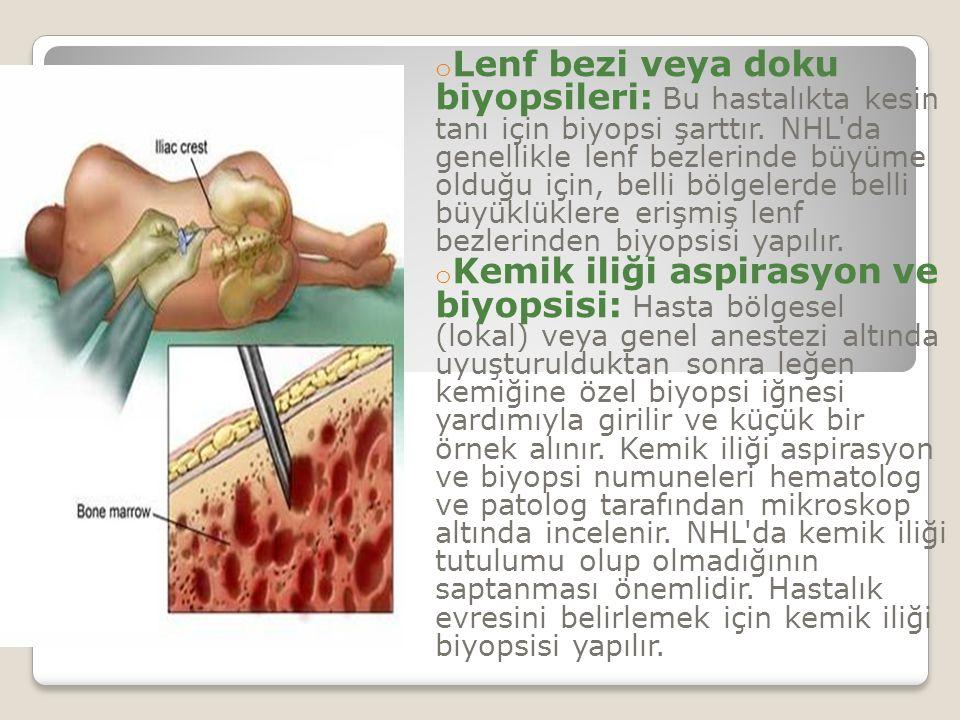 o Lenf bezi veya doku biyopsileri: Bu hastalıkta kesin tanı için biyopsi şarttır.
