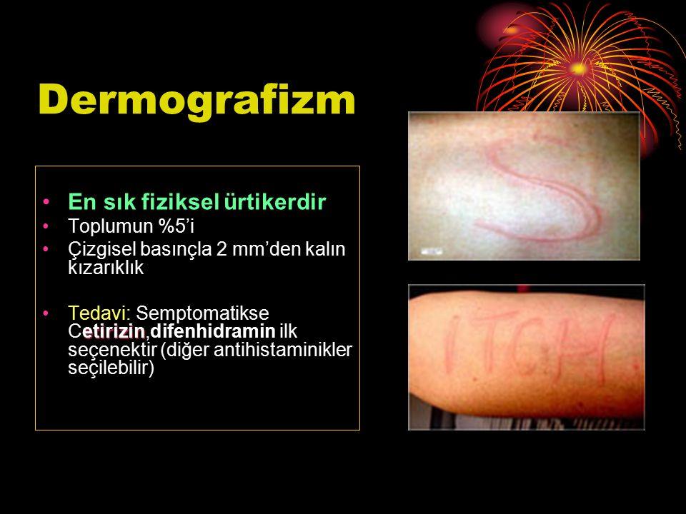 Dermografizm En sık fiziksel ürtikerdir Toplumun %5'i Çizgisel basınçla 2 mm'den kalın kızarıklık etirizinTedavi: Semptomatikse Cetirizin,difenhidrami