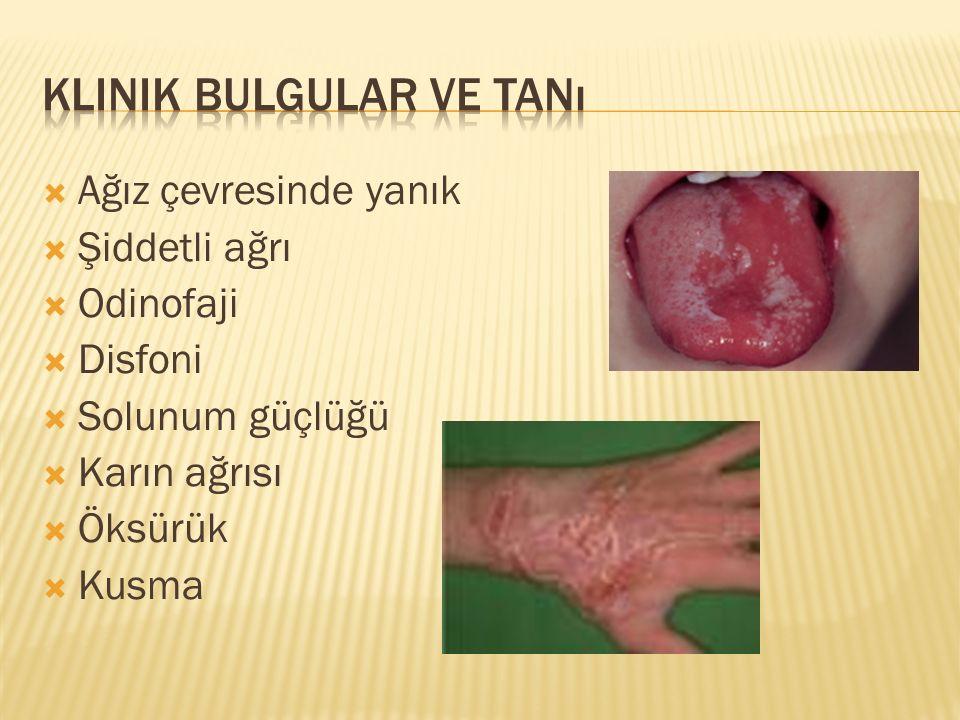  Ağız çevresinde yanık  Şiddetli ağrı  Odinofaji  Disfoni  Solunum güçlüğü  Karın ağrısı  Öksürük  Kusma