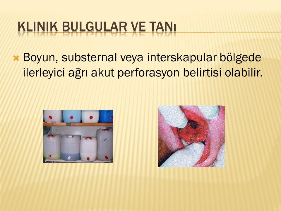  Boyun, substernal veya interskapular bölgede ilerleyici ağrı akut perforasyon belirtisi olabilir.