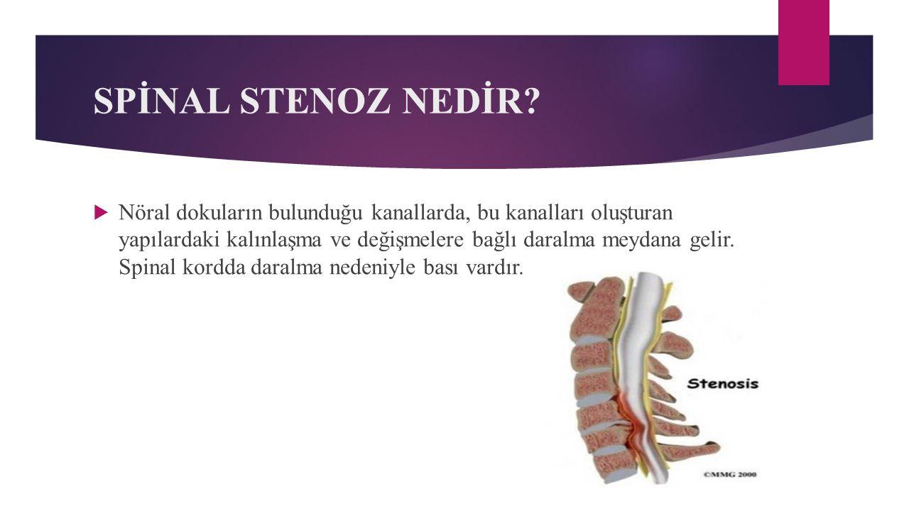 SPİNAL STENOZ NEDİR?  Nöral dokuların bulunduğu kanallarda, bu kanalları oluşturan yapılardaki kalınlaşma ve değişmelere bağlı daralma meydana gelir.