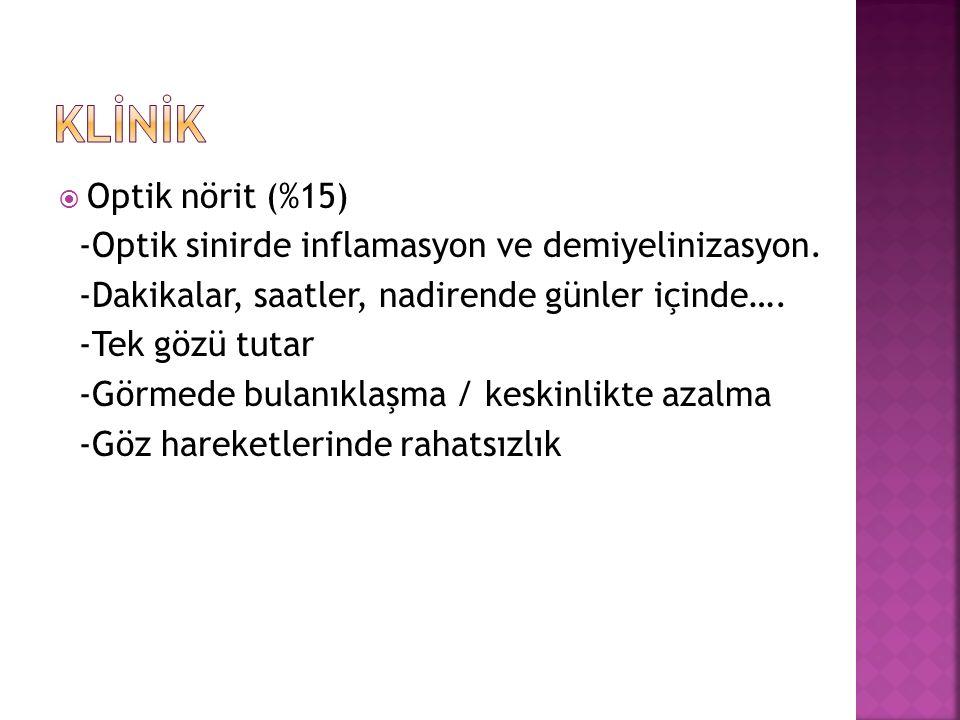  Optik nörit (%15) -Optik sinirde inflamasyon ve demiyelinizasyon.