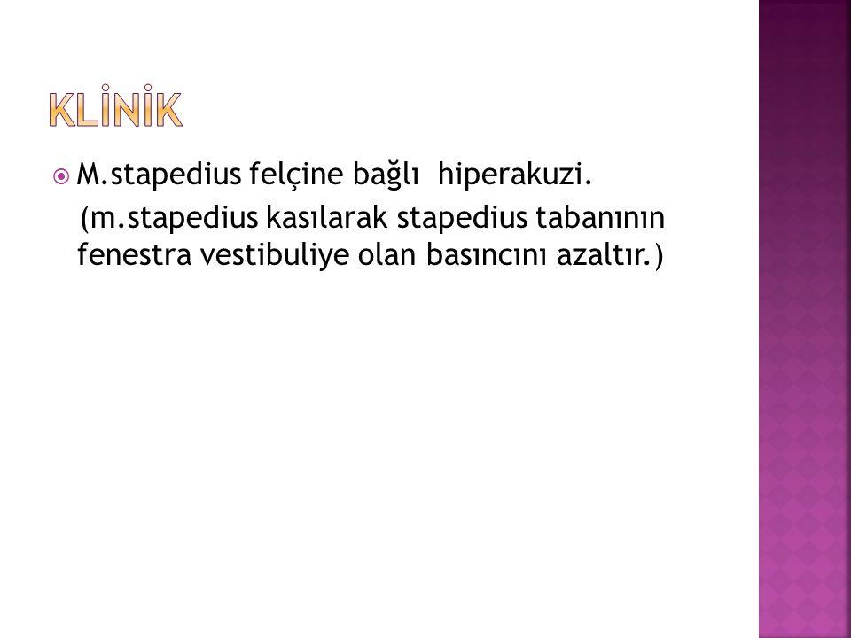  M.stapedius felçine bağlı hiperakuzi. (m.stapedius kasılarak stapedius tabanının fenestra vestibuliye olan basıncını azaltır.)