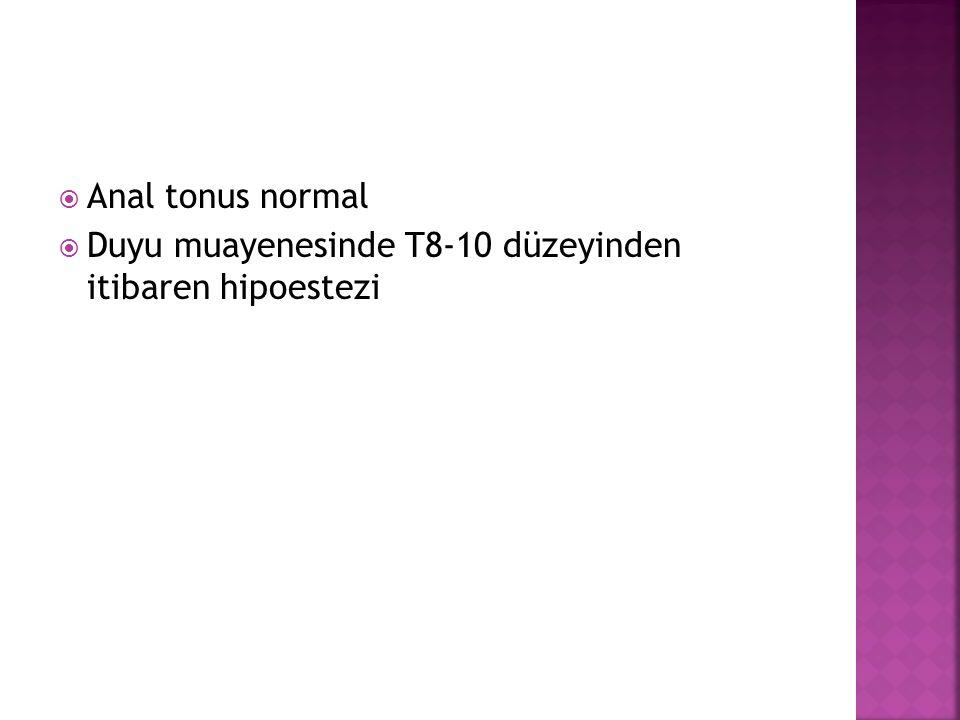 Anal tonus normal  Duyu muayenesinde T8-10 düzeyinden itibaren hipoestezi
