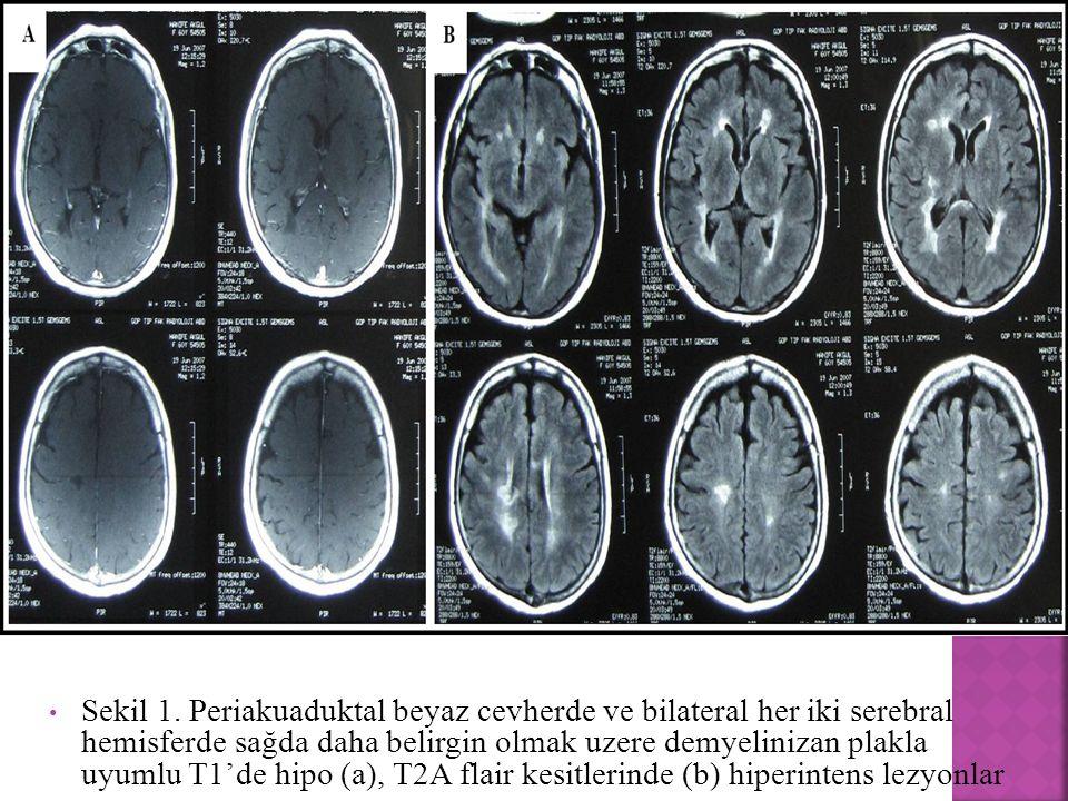 Sekil 1. Periakuaduktal beyaz cevherde ve bilateral her iki serebral hemisferde sağda daha belirgin olmak uzere demyelinizan plakla uyumlu T1'de hipo