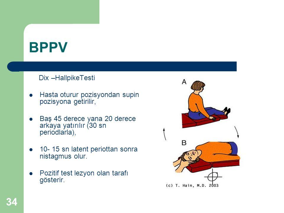 BPPV Dix –HallpikeTesti Hasta oturur pozisyondan supin pozisyona getirilir, Baş 45 derece yana 20 derece arkaya yatırılır (30 sn periodlarla), 10- 15 sn latent periottan sonra nistagmus olur.