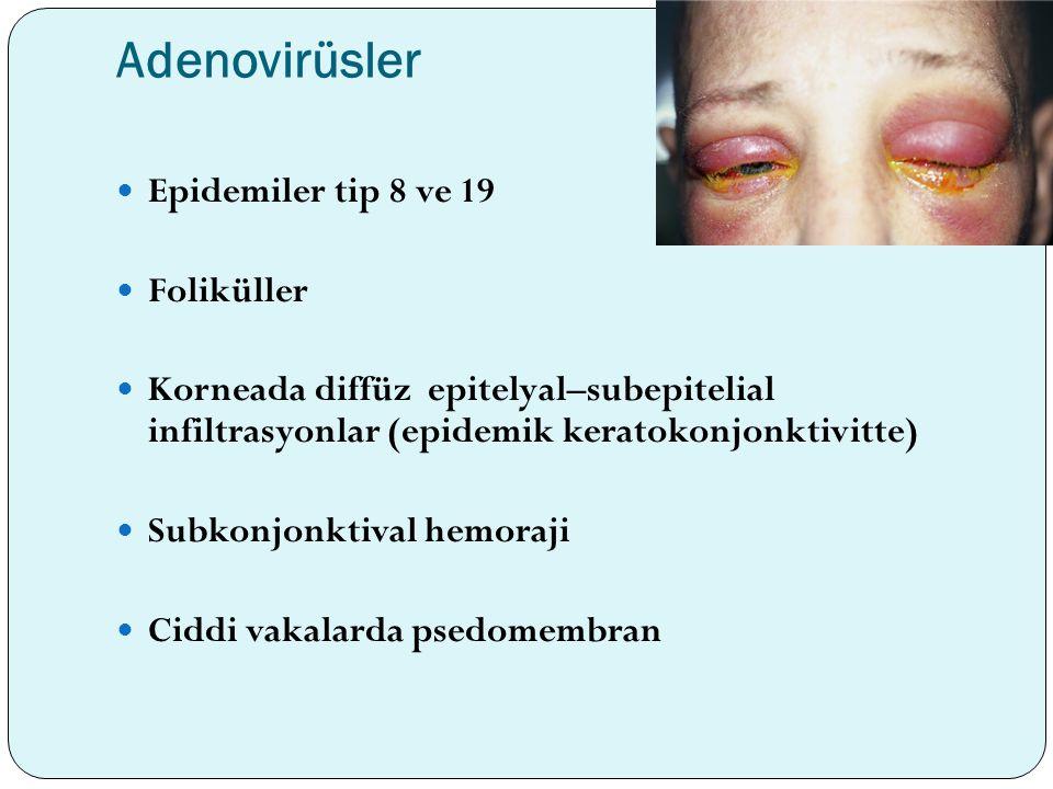 Adenovirüsler Epidemiler tip 8 ve 19 Foliküller Korneada diffüz epitelyal–subepitelial infiltrasyonlar (epidemik keratokonjonktivitte) Subkonjonktival
