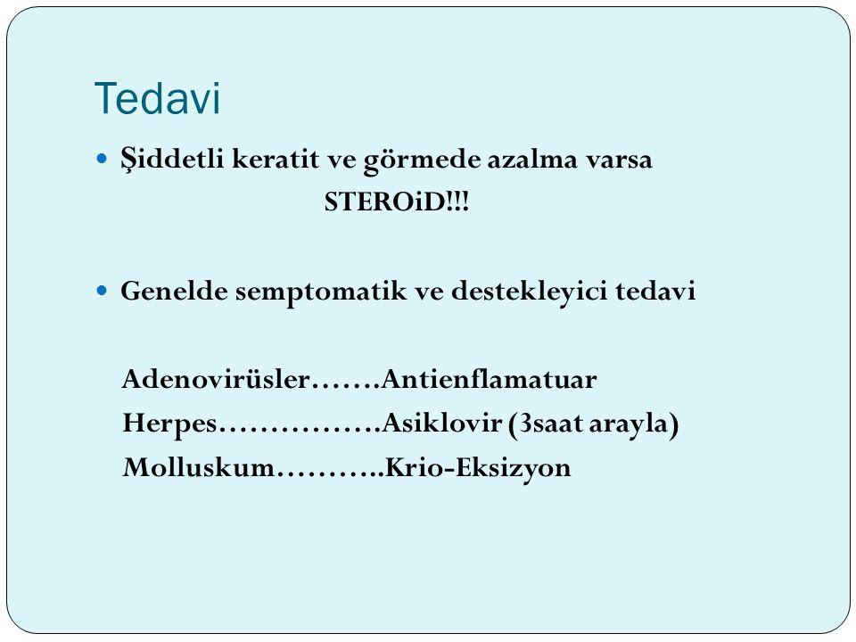Tedavi Ş iddetli keratit ve görmede azalma varsa STEROiD!!! Genelde semptomatik ve destekleyici tedavi Adenovirüsler…….Antienflamatuar Herpes…………….Asi
