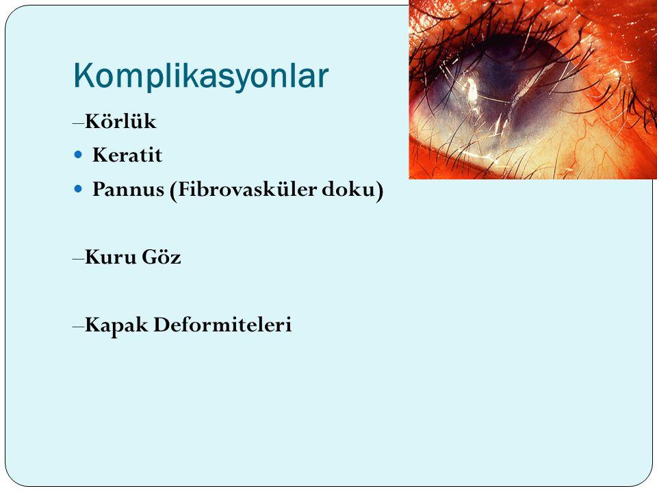 Komplikasyonlar –Körlük Keratit Pannus (Fibrovasküler doku) –Kuru Göz –Kapak Deformiteleri