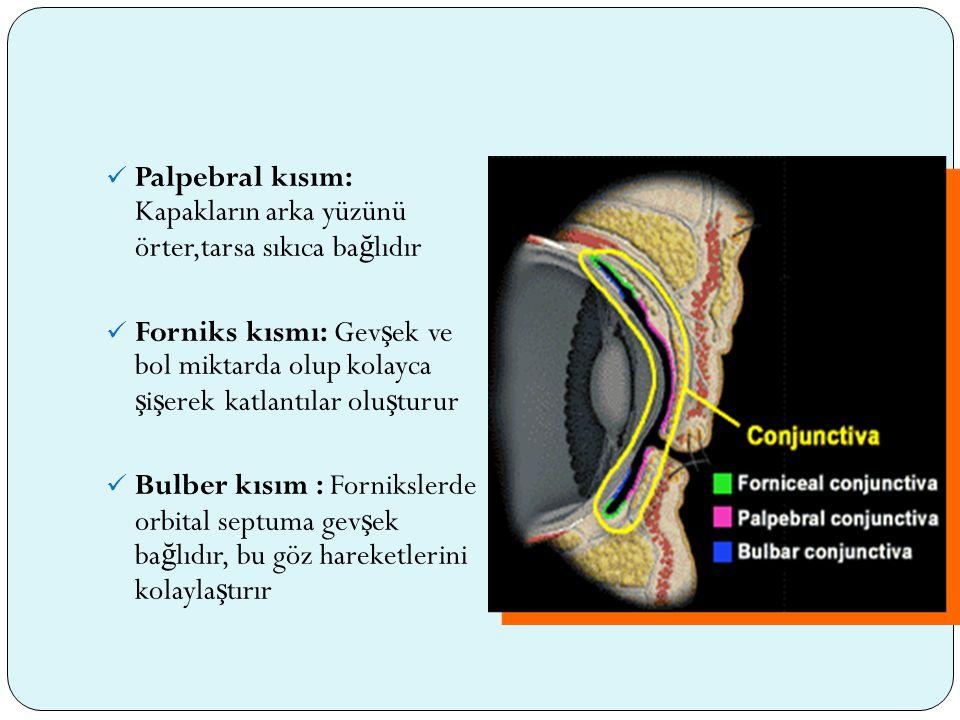 Klinik özellikler: Foliküler konjonktivit geli ş imiyle ortaya çıkar Hafif vakalarda ince lineer veya yıldız ş eklinde küçük skarlarla ya da daha a ğ ır vakalarda confluent skarlarla seyreden nedbelenme Konjonktiva tamamen tutulmu ş olsa bile üst tarsta nedbelenme daha belirgindir Keratit süperior epitelyal keratittten anterior stromal infiltratlar ve pannus formasyona dek uzanan bir seyir takip eder