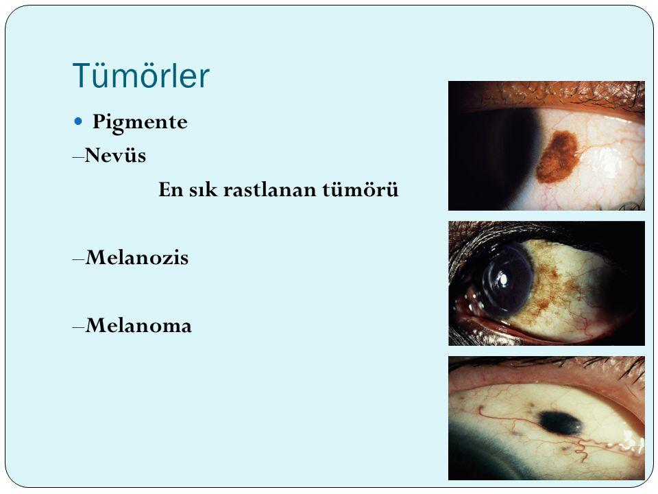 Tümörler Pigmente –Nevüs En sık rastlanan tümörü –Melanozis –Melanoma