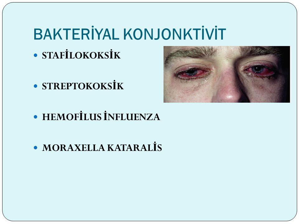 Semptomlar A ğ rı Sekresyon İ rritasyon Belirtileri *Yanma-Batma *Lakrimasyon *Fotofobi