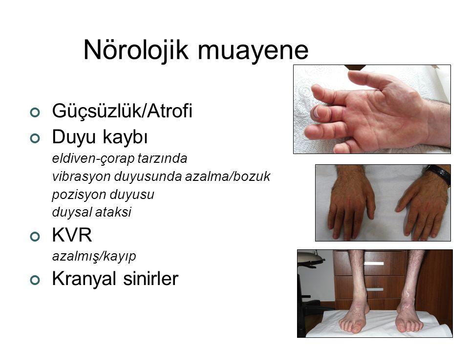 Asimetrik nöropatiler 1.Radikülopleksus nöropatileri Lumbosakral Torasik Servikal 2.