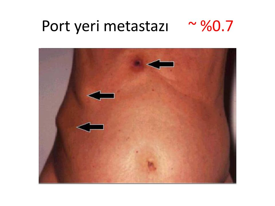 Port yeri metastazı ~ %0.7