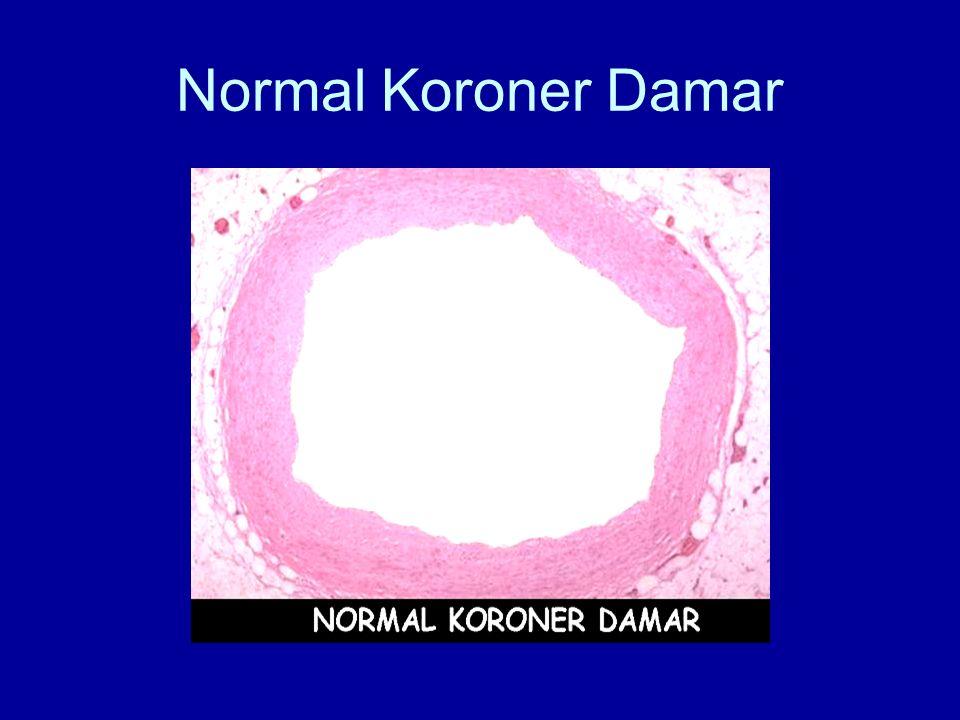Normal Koroner Damar