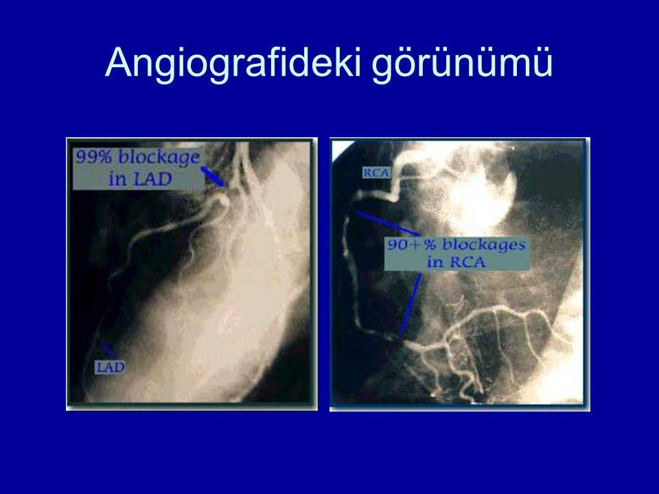 Angiografideki görünümü