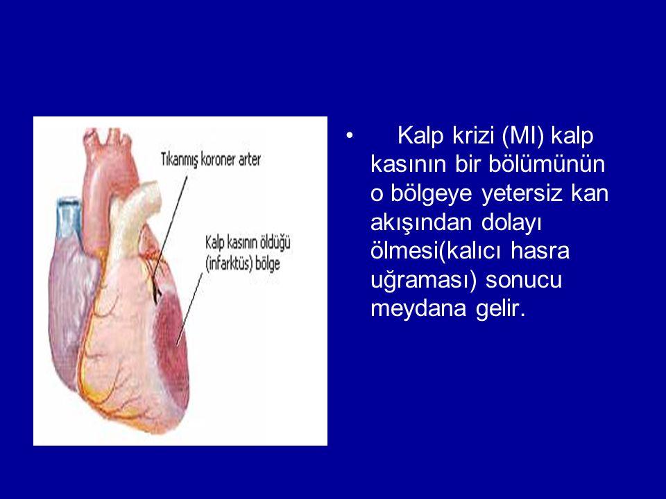 Kalp krizi (MI) kalp kasının bir bölümünün o bölgeye yetersiz kan akışından dolayı ölmesi(kalıcı hasra uğraması) sonucu meydana gelir.